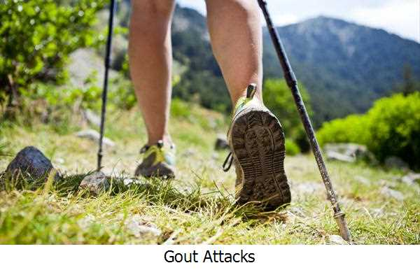 Gout Attacks
