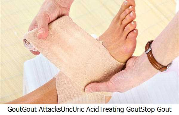 Gout,Gout Attacks,Uric,Uric Acid,Treating Gout,Stop Gout Pain,Gout Symptoms,Gouts,Gout Symptom