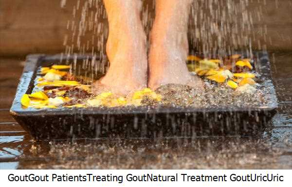 Gout,Gout Patients,Treating Gout,Natural Treatment Gout,Uric,Uric Acid,Gout Attacks