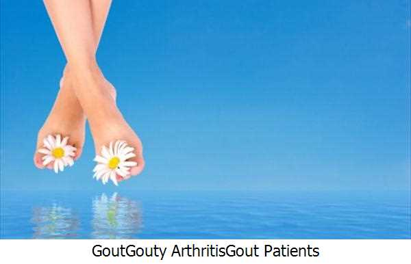 Gout,Gouty Arthritis,Gout Patients