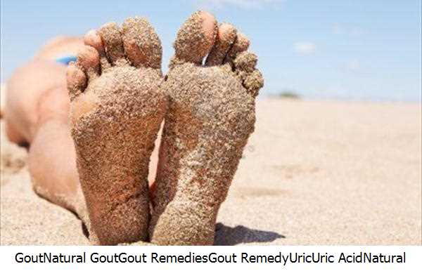 Gout,Natural Gout,Gout Remedies,Gout Remedy,Uric,Uric Acid,Natural Gout Remedies,Gout Attacks,Natural Gout Remedy,Gout Prevention