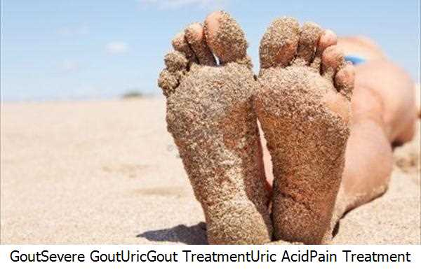 gout medication japan lemon treatment for gout can gout affect hips