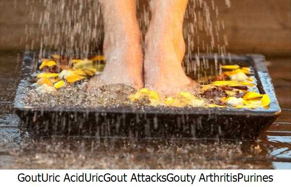 Gout,Uric Acid,Uric,Gout Attacks,Gouty Arthritis,Purines