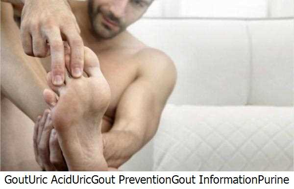 Gout,Uric Acid,Uric,Gout Prevention,Gout Information,Purine Rich Foods,Uric Acid Levels,Gout Gout,Purines,Uric Acid Level,Gout Remedy