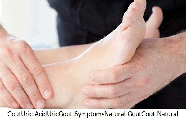 Gout,Uric Acid,Uric,Gout Symptoms,Natural Gout,Gout Natural