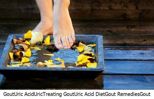 Gout,Uric Acid,Uric,Treating Gout,Uric Acid Diet,Gout Remedies,Gout Toes,Gout Gout