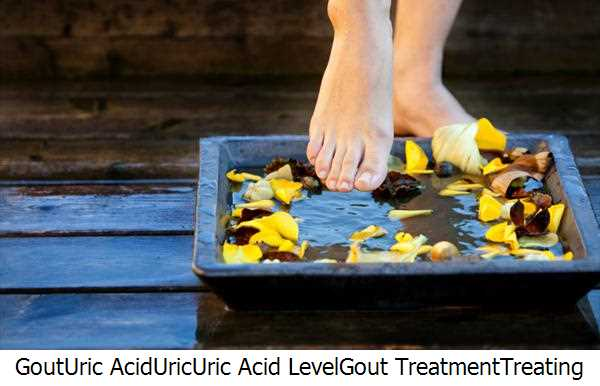 Gout,Uric Acid,Uric,Uric Acid Level,Gout Treatment,Treating Gout