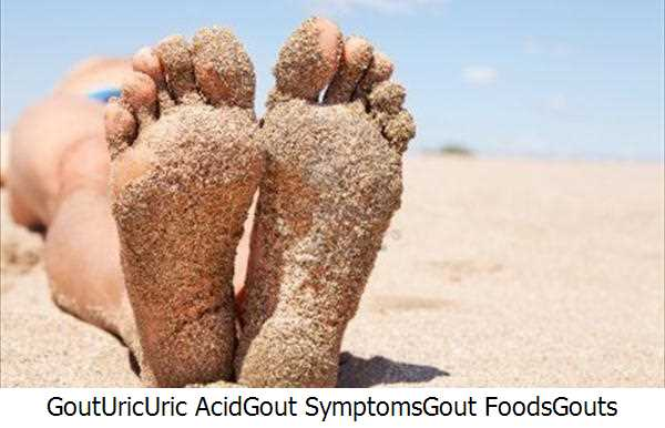 Gout,Uric,Uric Acid,Gout Symptoms,Gout Foods,Gouts