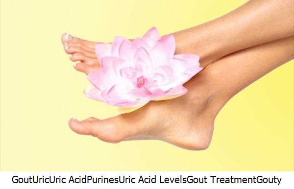 Gout,Uric,Uric Acid,Purines,Uric Acid Levels,Gout Treatment,Gouty Arthritis