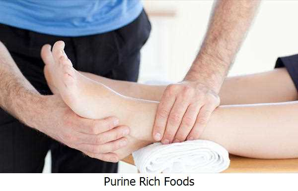 Purine Rich Foods