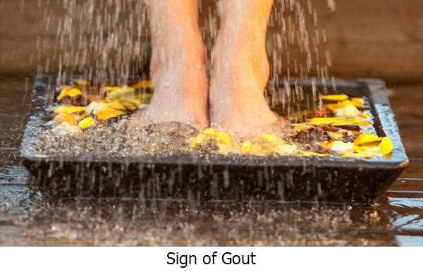 Sign of Gout