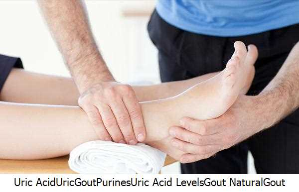 Uric Acid,Uric,Gout,Purines,Uric Acid Levels,Gout Natural,Gout Gout